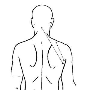 The official diagram of robert f kennedy s gunshot wounds